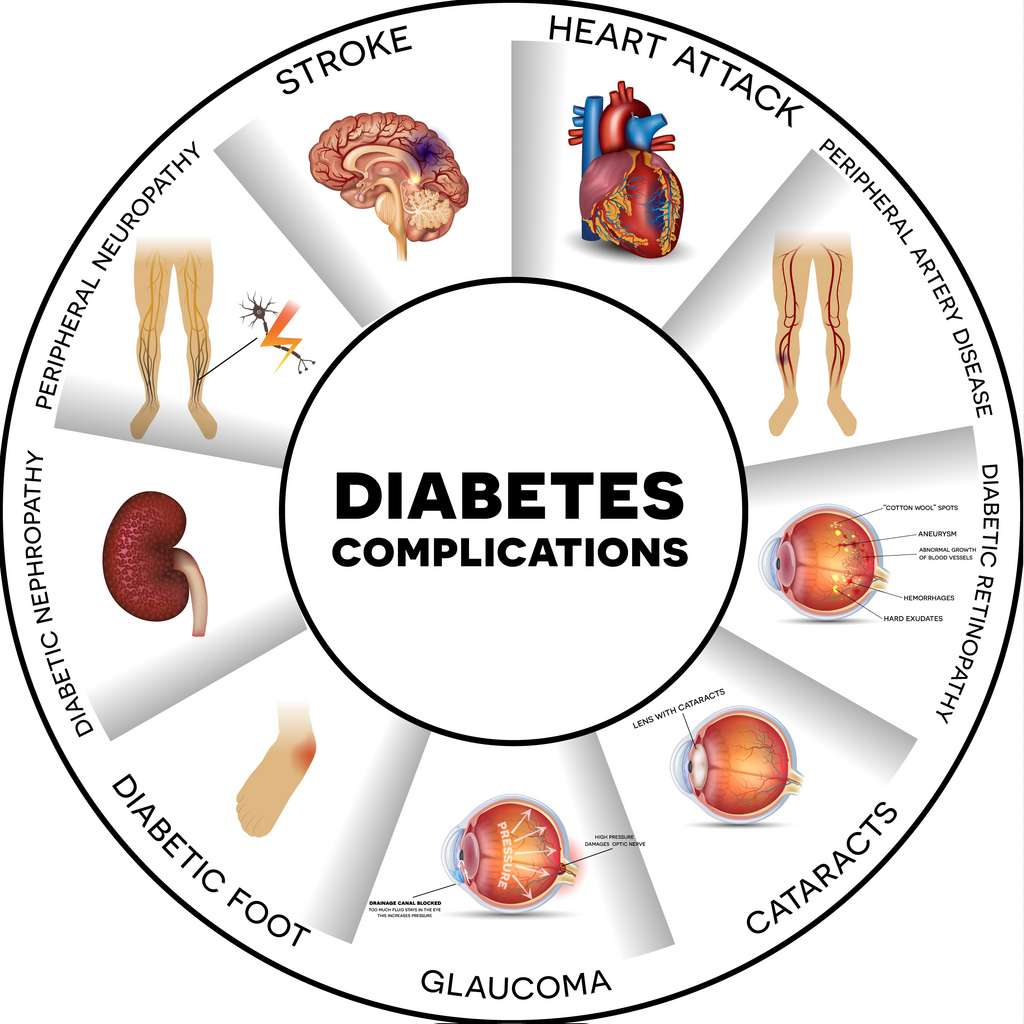 Les différentes complications du diabète. © CC Reineg, Adobe Stock