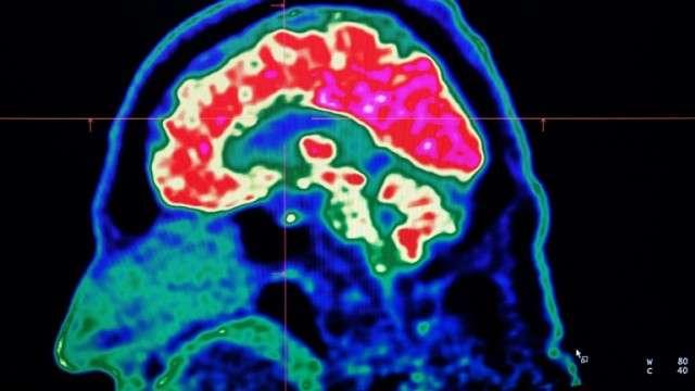 Des chercheurs sont sur la piste d'un décodeur pour reproduire des paroles synthétiques par ordinateur à partir des signaux cérébraux. © Fred Tanneau, AFP, Archives