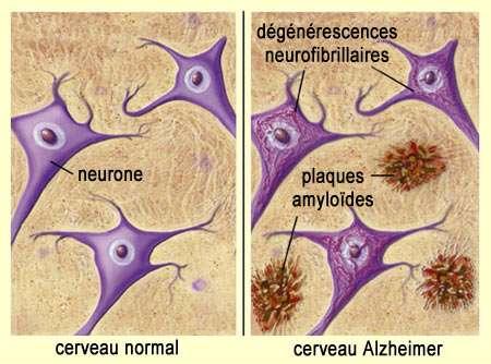 Chez un patient atteint d'Alzheimer, les plaques amyloïdes coupent la connexion entre les neurones et les enchevêtrements de protéines Tau induits de la dégénérescence des cellules. © Université de McGill