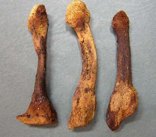 Fig. 16 - Pied droit d'Arégonde, détail sur les déformations des métatarsiens 3 à 5. © V. Gallien, Inrap