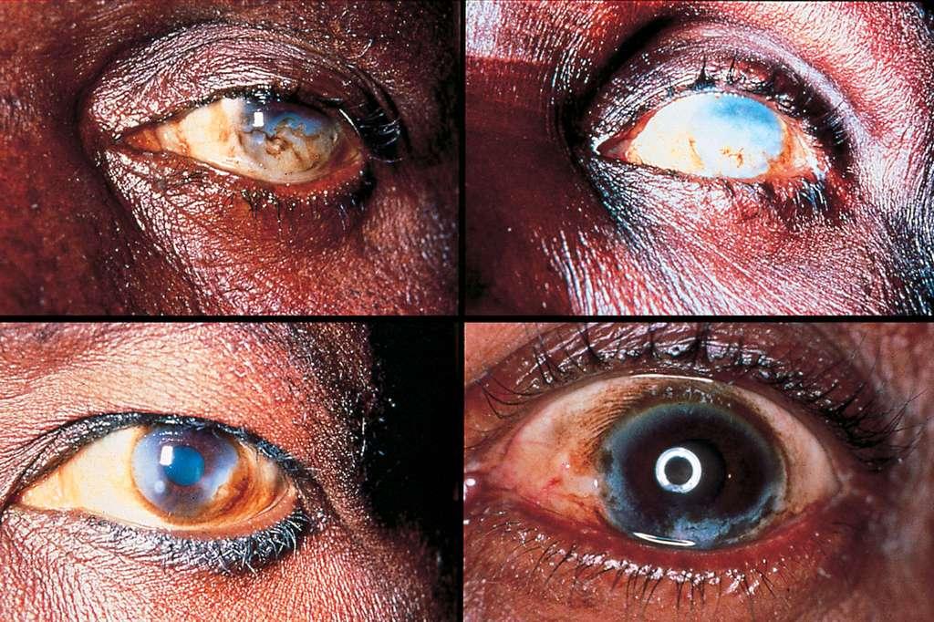 L'onchocercose est la quatrième cause de cécité dans le monde. © Ian Murdoch & Allen Foster, Community Eye Health Journal