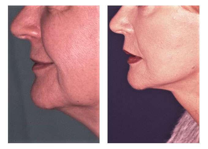 Patiente avant et après un lifting cervico-facial. © Dr Mitz, tous droits réservés