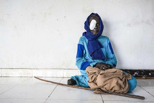 Dans beaucoup de pays en développement, l'opération de la cataracte représente un coût important, ce qui est un frein au traitement. © Community Eye Health, Flickr, CC by-nc 2.0