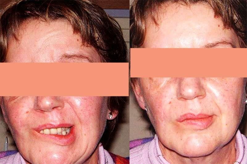 Avant injection de Botox, à gauche. Après injection, à droite. © Dr. Mitz, tous droits réservés
