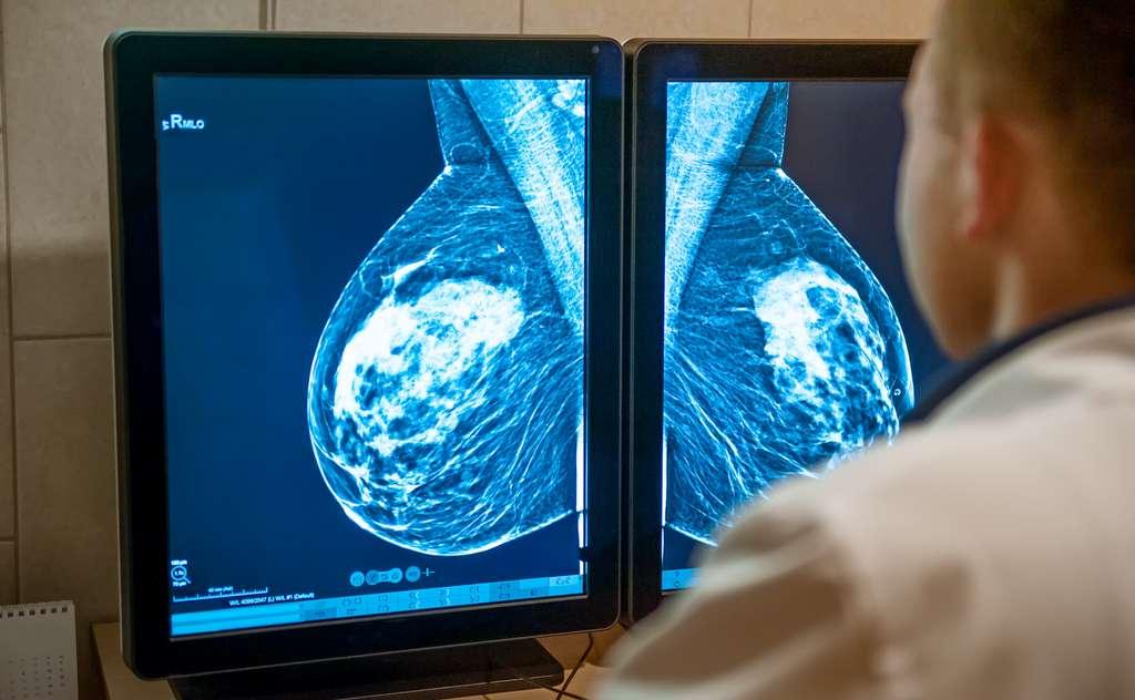 La mammographie est un examen efficace pour détecter les cancers du sein. © okrasiuk, Adobe Stock