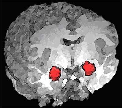 Position des noyaux amygdaliens, impliqués dans le circuit de l'empathie, tout comme le cortex somatosensoriel, l'insula, le cortex cingulaire et le cortex préfrontal ventromédian. © Wikimedia Commons, DP