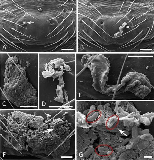 Photographies au microscope électronique à balayage sur des femelles d'Oedothorax retusus d'un petit bouchon génital mâle (A), de bouchons plus larges et plus ou moins homogènes (B), (C), (E), abîmé après 67 tentatives de copulation par un mâle secondaire (D), en présence de spermatozoïdes de 3 micromètres environ (cercles rouges) (F) et (G). © Katrin Kunz et al.