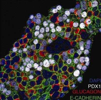 Ces cellules alpha pancréatiques, retrouvées dans des structures appelées îlots de Langerhans, ont été modifiées. La preuve : si la plupart d'entre elles sécrètent du glucagon (en rouge), d'autres présentent le facteur de transcription Pdx1 (en blanc), normalement spécifique aux cellules bêta pancréatiques. La reprogrammation est donc possible. © Nuria Bramswig, Perelman School of Medicine, University of Pennsylvania