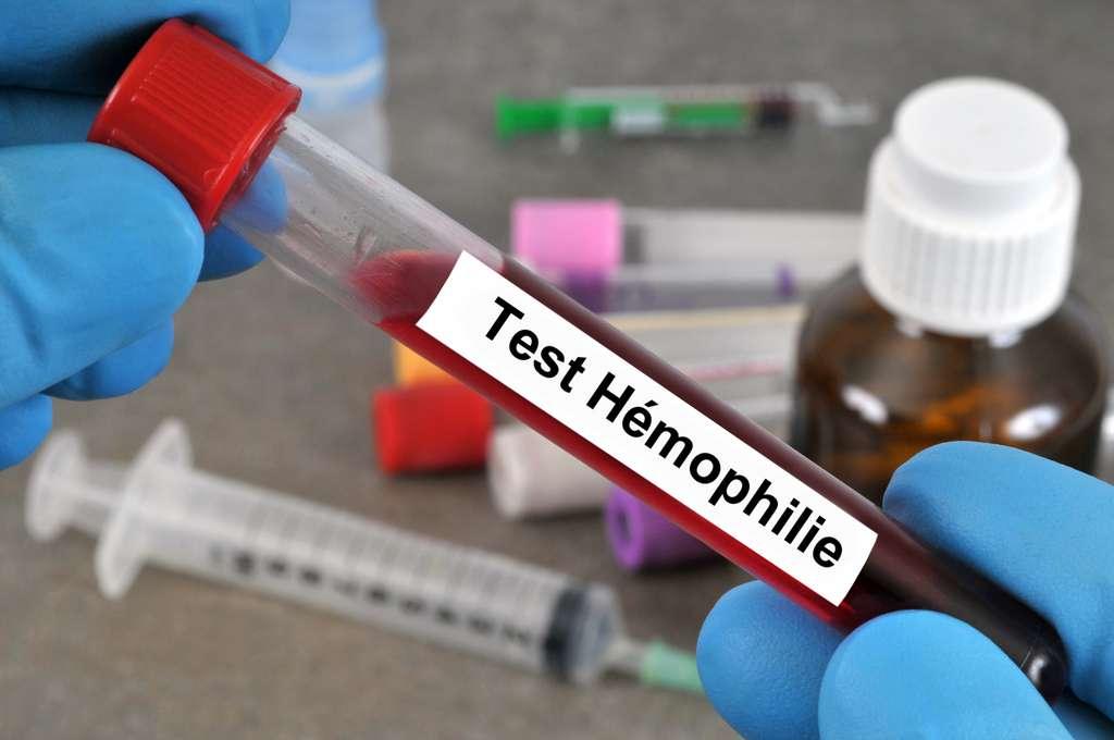 La thérapie génique est encourageante pour combattre l'hémophilie. Cette dernière touche très majoritairement des hommes puisqu'il s'agit d'une mutation au niveau du chromosome sexuel X. Dans les formes mineures, quand les patients ont le facteur de coagulation présent entre 5 et 30 % de la normale, les risques sont faibles, mais dans les formes sévères (moins de 1 % d'activité par rapport à la norme), des hémorragies se forment spontanément et il devient difficile de les stopper. © Richard Villalon, Adobe Stock
