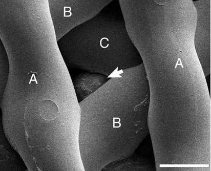 La flèche montre le follicule dans la matrice imprimée. © Laronda et al., Nature Communications 2017