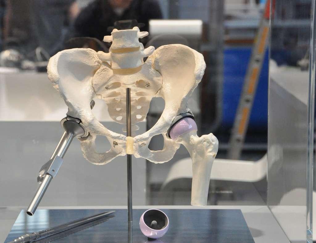La tête céramique du fémur s'adapte parfaitement dans la cavité de la hanche en composite PEEK conçue par Fraunhofer IPA. © Fraunhofer IPA, EDP Sciences, tous droits réservés