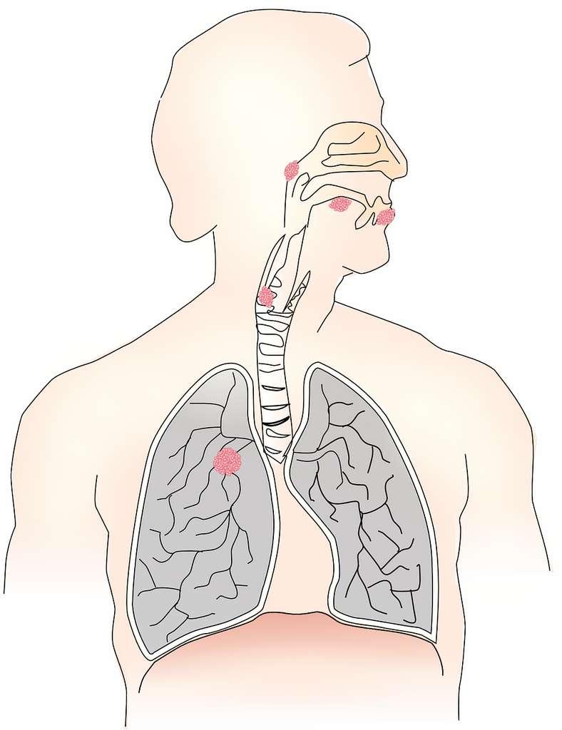Le cancer de la gorge est appelé en médecine cancer des voies aérodigestives supérieures. © LUM3N by Pixabay