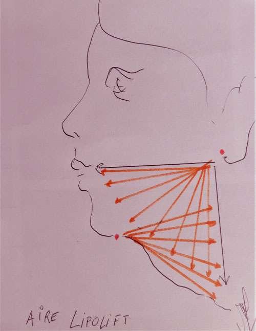 Principes du lipolifting par liposuccion (en 3 incisions). © Dr Mitz, tous droits réservés