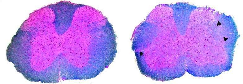 Chez les souris modèles de la sclérose en plaques, la démyélinisation du système nerveux central est moins observée lorsqu'elles sont vaccinées (à gauche) que lorsqu'elles ne le sont pas (à droite). © Journal of Clinical Investigation
