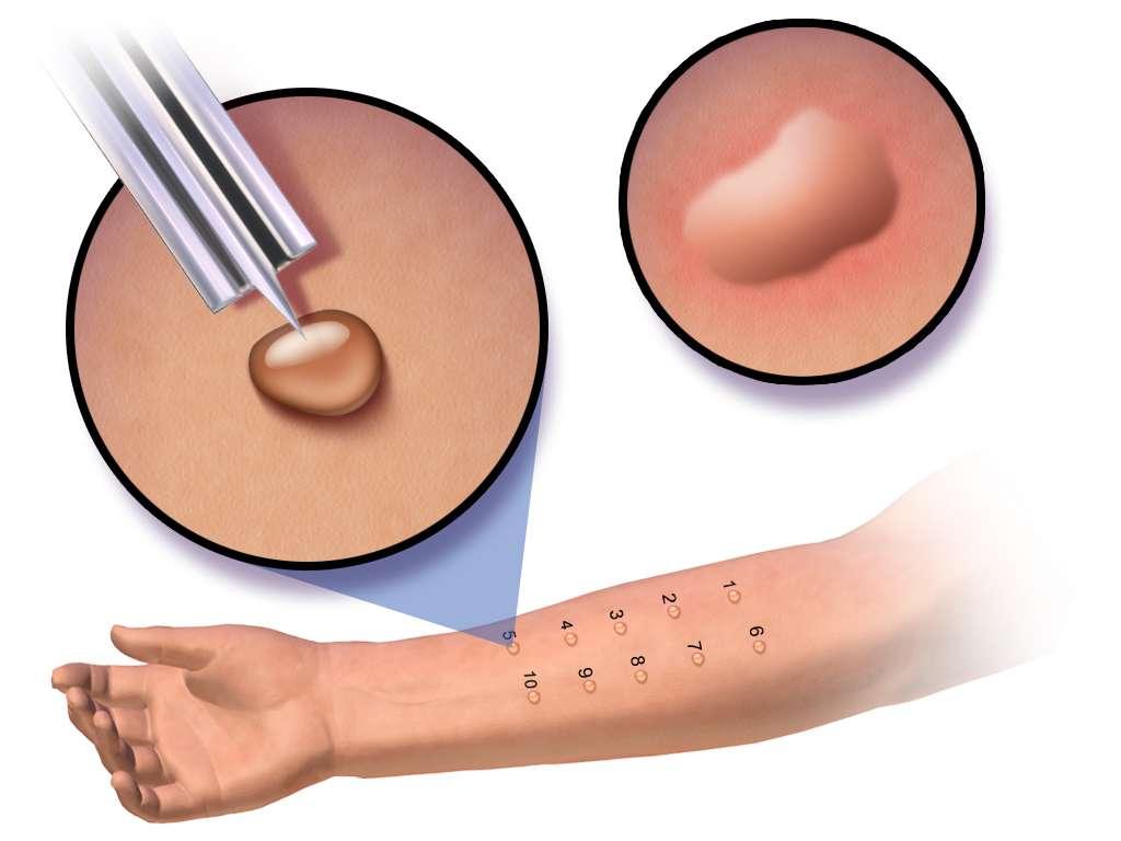 Le prick-test consiste à faire pénétrer une goutte d'allergène avec une seringue. Il est considéré comme positif si une papule de plus de 3 mm apparaît. © BruceBlaus, CC by-sa 4.0