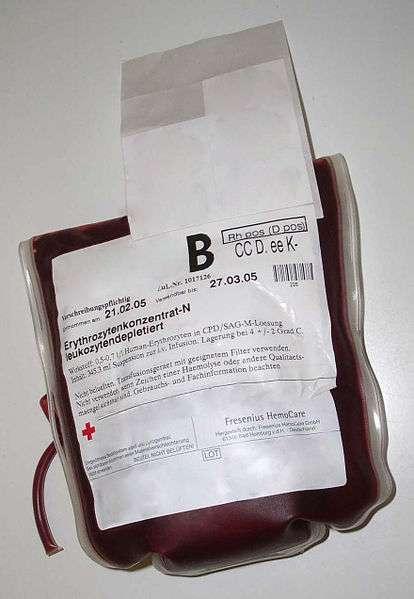 Les personnes hémophiles reçoivent des produits sanguins provenant de dons du sang. © Pflegewiki-User Würfel & Midnightsnack, CC by sa 3.0, Wikimedia Commons