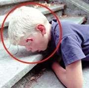 Plaie grave : comment réagir ? © Croix-Rouge française, G. Pascaud