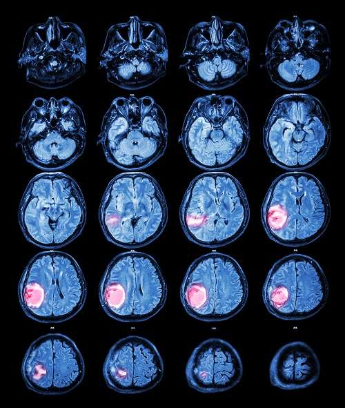 Les tumeurs cérébrales, ou plus généralement du système nerveux central, comprenant le cerveau et la moelle épinière, peuvent être bénignes ou cancéreuses et entraîner plus ou moins de séquelles, selon leur localisation et leur agressivité. Ici, une tumeur dans le lobe pariétal droit vue par IRM. © stockdevil, Fotolia
