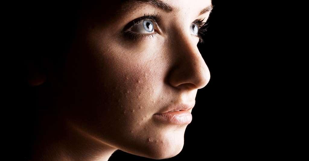Il existe de nombreux traitements de l'acné. © Katielittle, Shutterstock