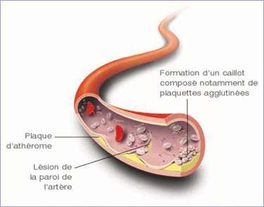 L'hypercholestérolémie conduit à un dépôt de LDL dans les vaisseaux sanguins formant une plaque d'athérome. Ceux-ci étant obstrués, le sang circule mal et peut même ne plus se frayer de chemin. Cela peut s'avérer mortel. © bmsfrance.fr
