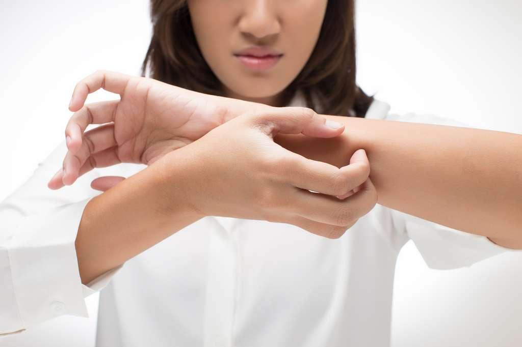 Les démangeaisons des piqûres de moustiques sont dues à leur salive inoculée pendant qu'ils prélèvent le sang. © Adiano, Fotolia