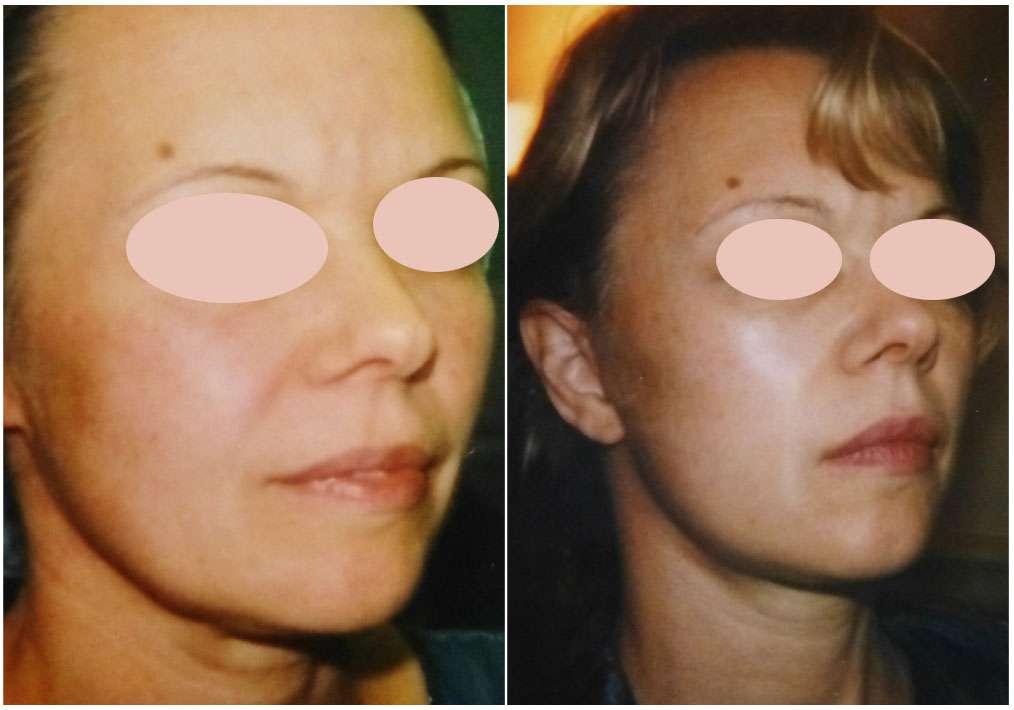 À gauche, patiente jeune demandeuse de rétablissement de l'ovale du visage par chirurgie efficace. À droite, résultat obtenu par microlift six mois après l'opération. © Dr Mitz, tous droits réservés