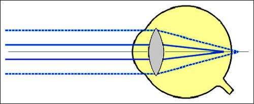 Œil astigmate. © Reproduction et utilisation interdites