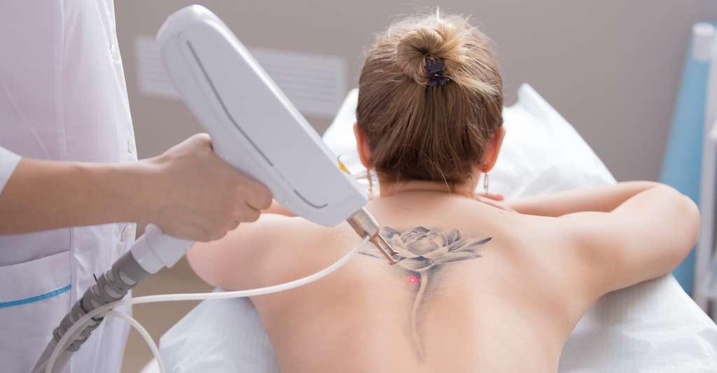 La découverte des chercheurs français pourrait permettre d'améliorer les techniques laser qui proposent d'effacer les tatouages. © 4frame group, Fotolia