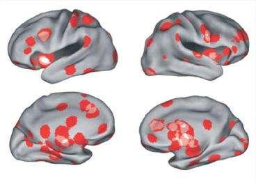 L'analyse combinée de l'étude de l'amour par IRM fonctionnelle sur 120 personnes montre 12 zones cérébrales préférentiellement activées. © Ortigue, The journal of sexual medicine