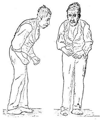 Profil d'un malade d'Alzheimer. Ce dessin a été réalisé en 1886 par un neurologue, Sir William Richard Gowers, pour illustrer son livre, A manual of Diseases of Nervous system. © DP