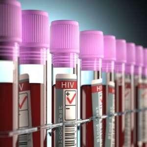 L'augmentation du dépistage pour le VIH s'est accompagnée de la diminution du nombre de découvertes de la séropositivité. © ktsimage, Istock.com
