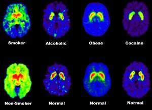 La dépression peut contribuer à plonger le patient dans une addiction telle que l'alcool, la nourriture ou la drogue. La chimie et les modes de réaction du cerveau s'en trouvent chamboulés, comme le montrent ces scanners de patients « accros » ou non à ces diverses substances. Le risque : la création d'un cercle vicieux qui va contribuer à enfoncer encore plus le patient dans sa dépression. L'autre risque de complication de la dépression étant la rechute. © Nora Volkow /Administration USA