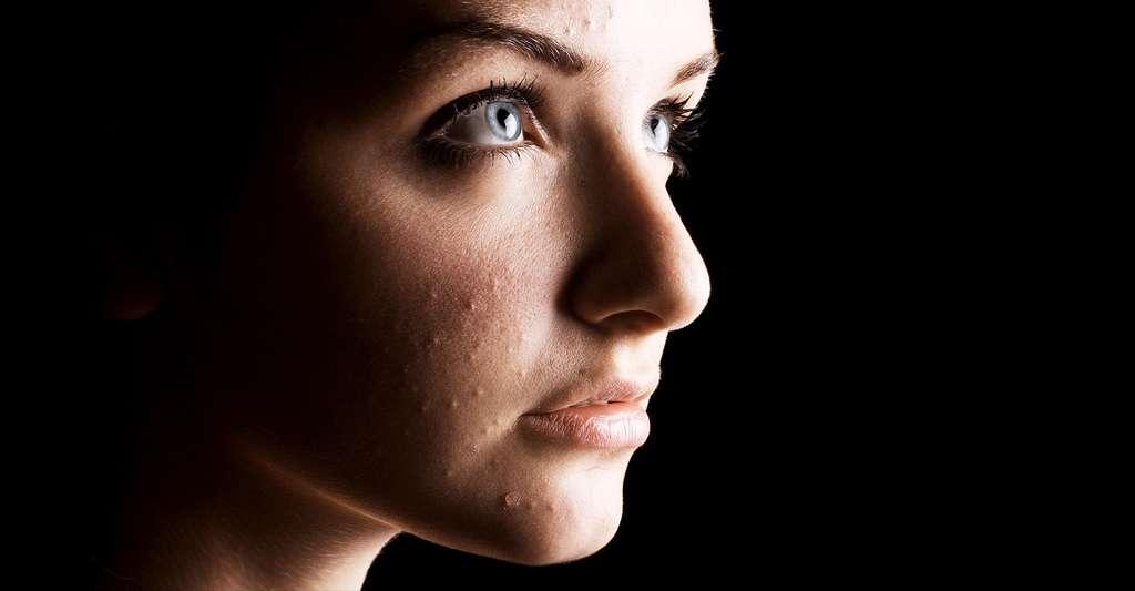 La localisation sur le visage de la rosacée pourrait induire le patient en erreur, mais l'acné a des caractéristiques bien précises. © R.Iegosyn - Shutterstock