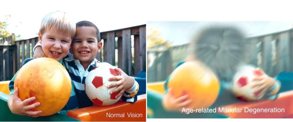 La DMLA affecte profondément l'acuité visuelle. Ces deux images représentent une même scène perçue avec une vision normale (à gauche) ou chez une personne atteinte de DMLA (à droite). © NIH
