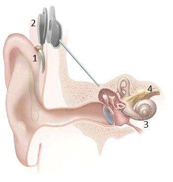 Les sons sont captés par le microphone (1), transformés en signaux électriques et transmis jusqu'à l'émetteur (2). Les ondes radio sont captées sous la peau, l'information est transmise par un fil électrique jusqu'à la cochlée (3), qui active le nerf auditif (4). © NIH, domaine public