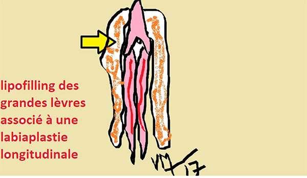 Plusieurs méthodes de chirurgie plastique pour la labiaplastie. © Dr Mitz, tous droits réservés