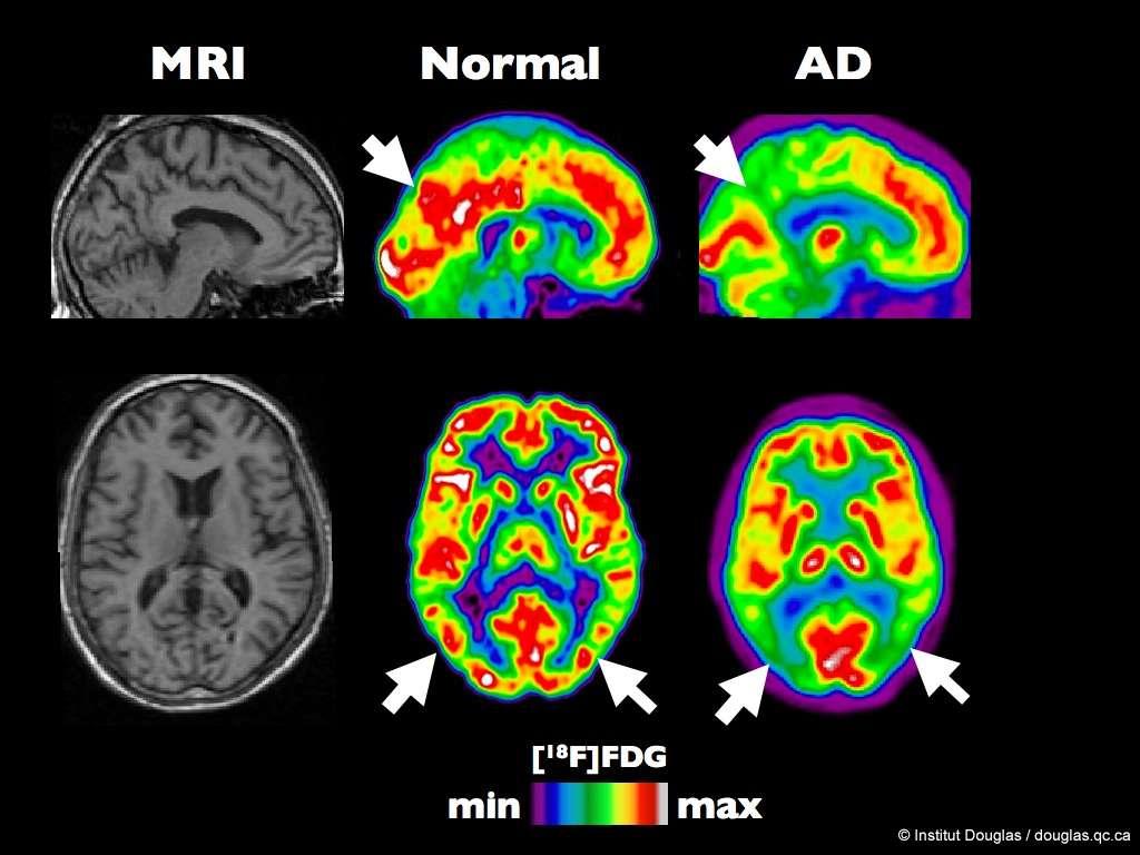 Tomographie par émission de positons (PET Scan en anglais) d'un cerveau en santé en comparaison avec un cerveau atteint d'Alzheimer à un stade précoce. © Institut Douglas, Flickr, Licence Creative Commons, by nc sa 2.0