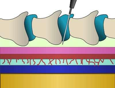 La péridurale est une technique d'anesthésie locorégionale qui consiste à introduire un cathéter dans l'espace péridural permettant la diffusion d'un produit analgésique ou anesthésique. © Southwest (talk), Wikimedia Commons, cc by sa 3.0