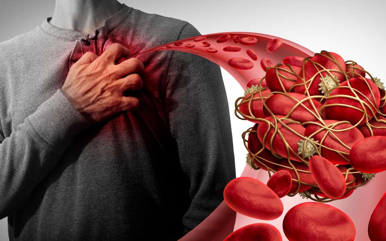 Des autoanticorps favorisent la formation de caillots sanguins chez les patients Covid-19. © freshidea, Adobe Stock