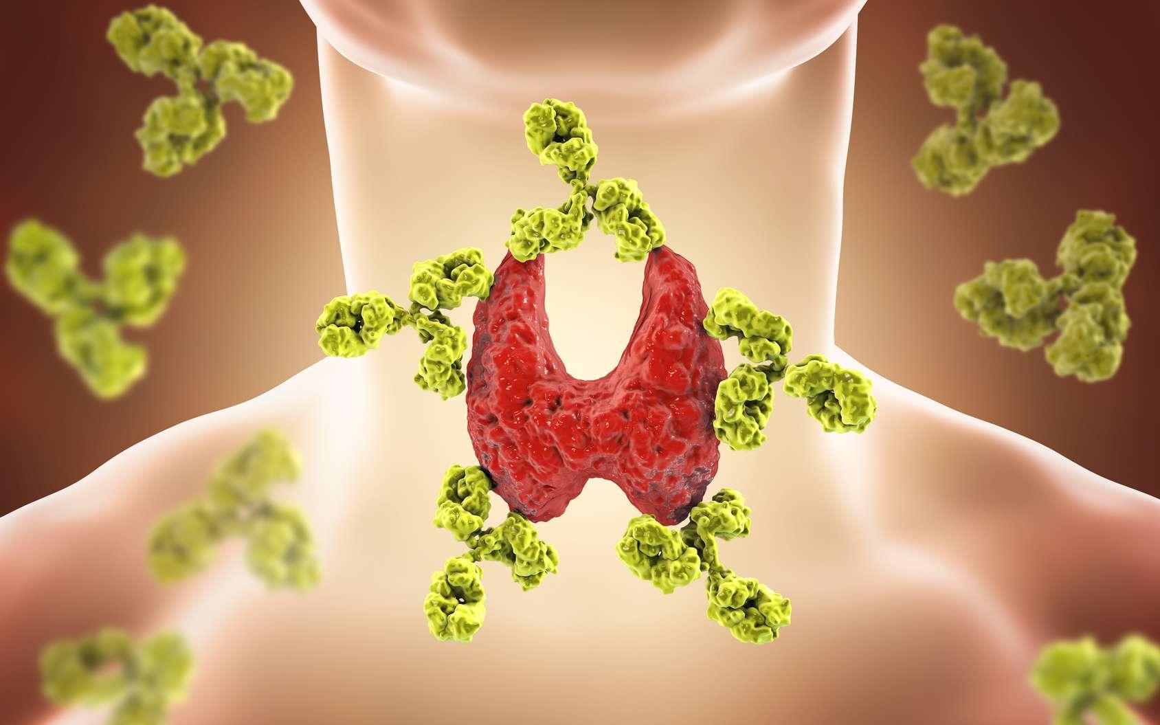 Dans une maladie auto-immune, le système immunitaire s'attaque aux tissus de l'organisme. © Kateryna_Kon, Fotolia