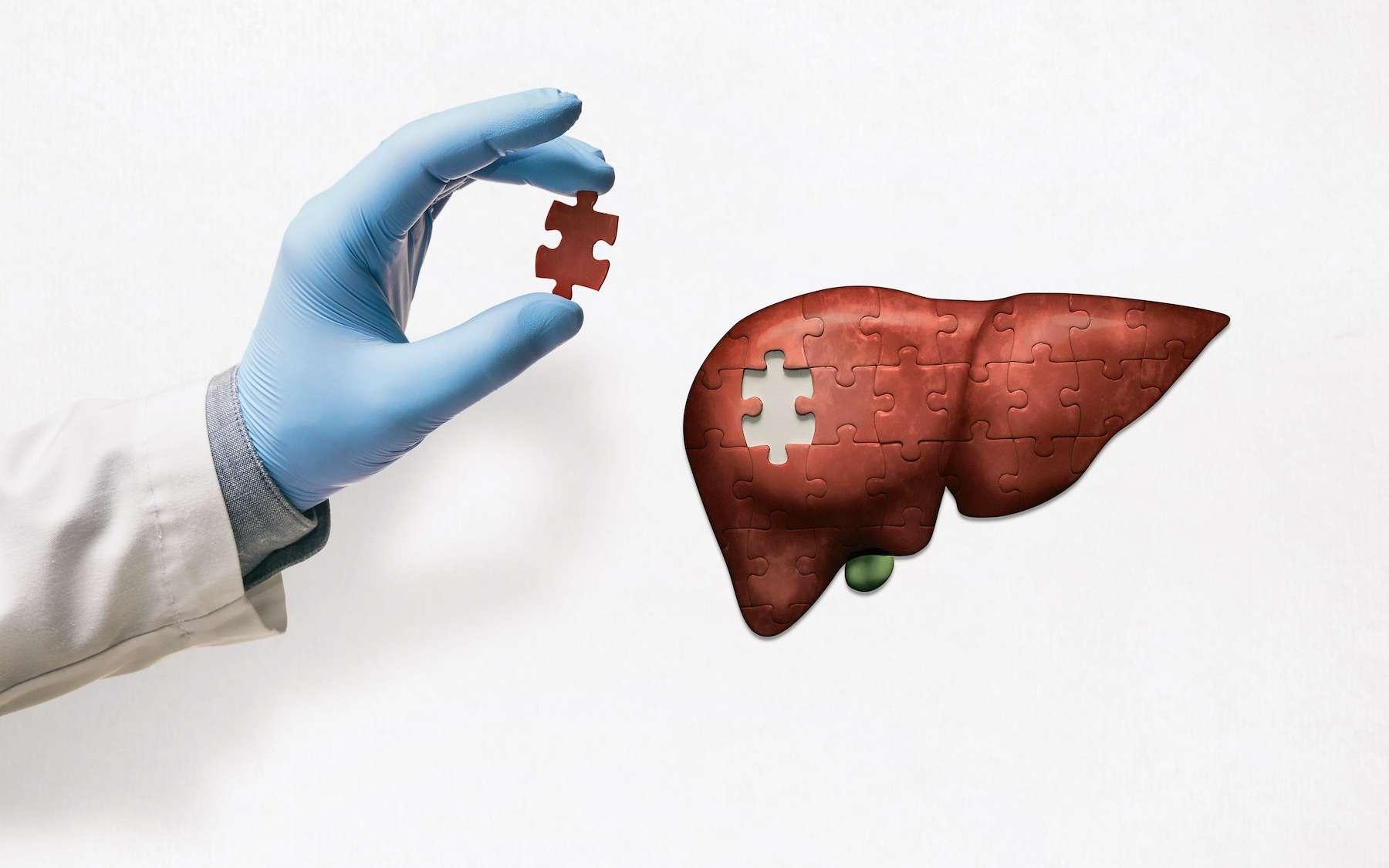 Des protéines fabriquées par le foie s'accumulent en plaques amyloïdes dans le cerveau. © svetazi, Adobe Stock