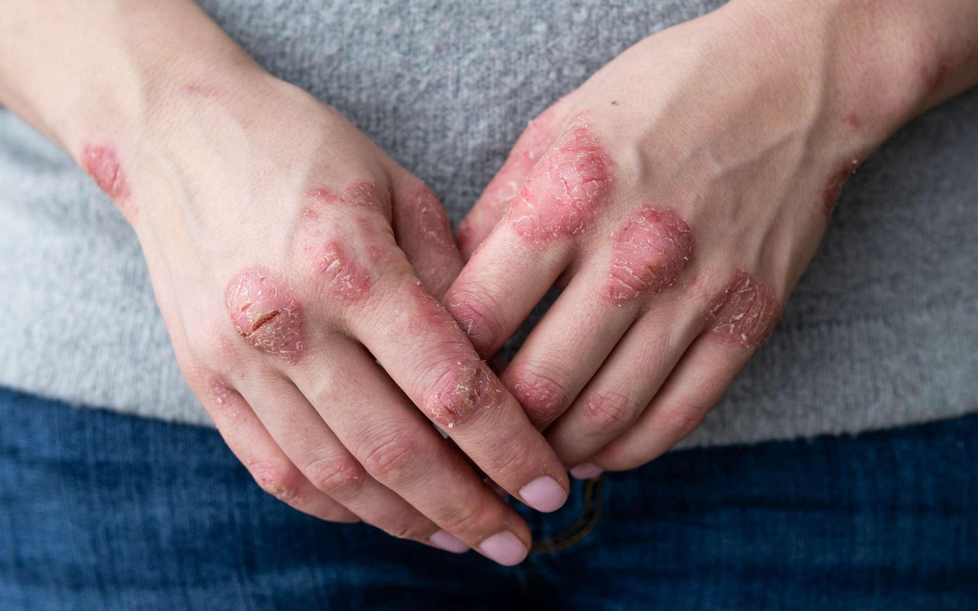 Non, le psoriasis n'est pas contagieux © IIIRusya, Adobe Stock