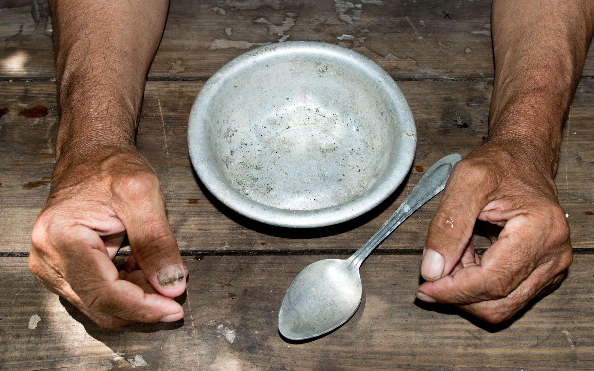 Chaque année, la carence en vitamine A rend aveugle 250.000 à 500.000 enfants. © Stanislau_V, Adobe Stock