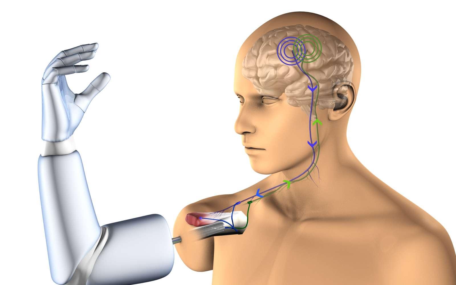 Vue schématisée de la prothèse implantée directement sur l'os du membre amputé grâce à un insert en titane. Les électrodes seront placées sur les nerfs et les muscles restants. © Integrum