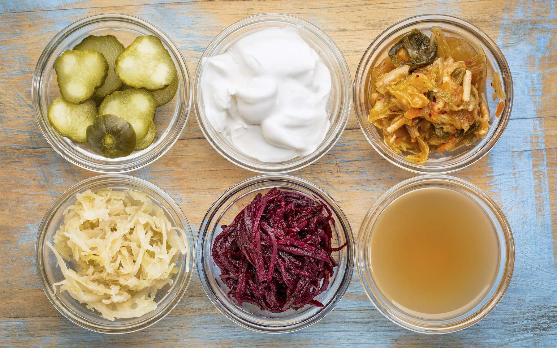 Les aliments fermentés contiennent naturellement des probiotiques. © MarekPhotoDesign.com, Adobe Stock