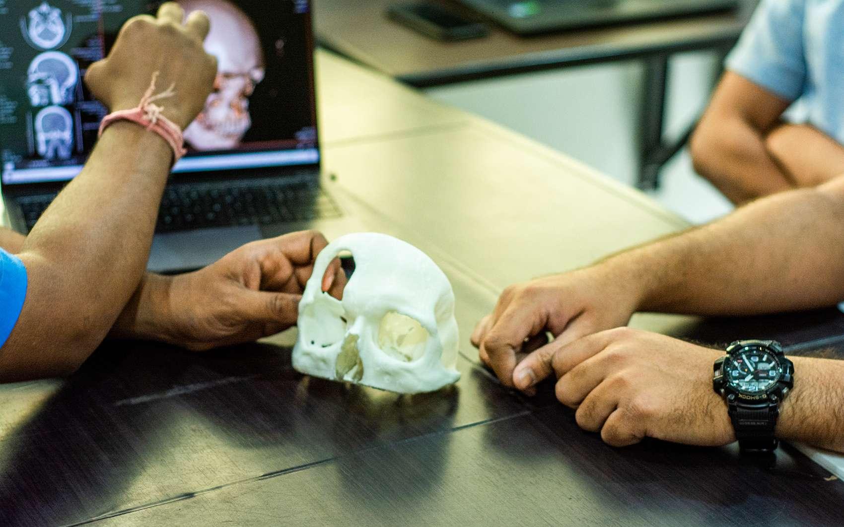 Les implants imprimés en 3D de LUCID Implants promettent de démocratiser l'accès aux soins. © LUCID Implants