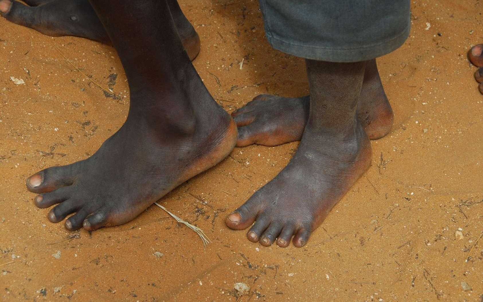 L'étude s'est intéressée aux pieds de 81 adultes au Kenya, dont certains ne portaient jamais de chaussures. © africa, Fotolia