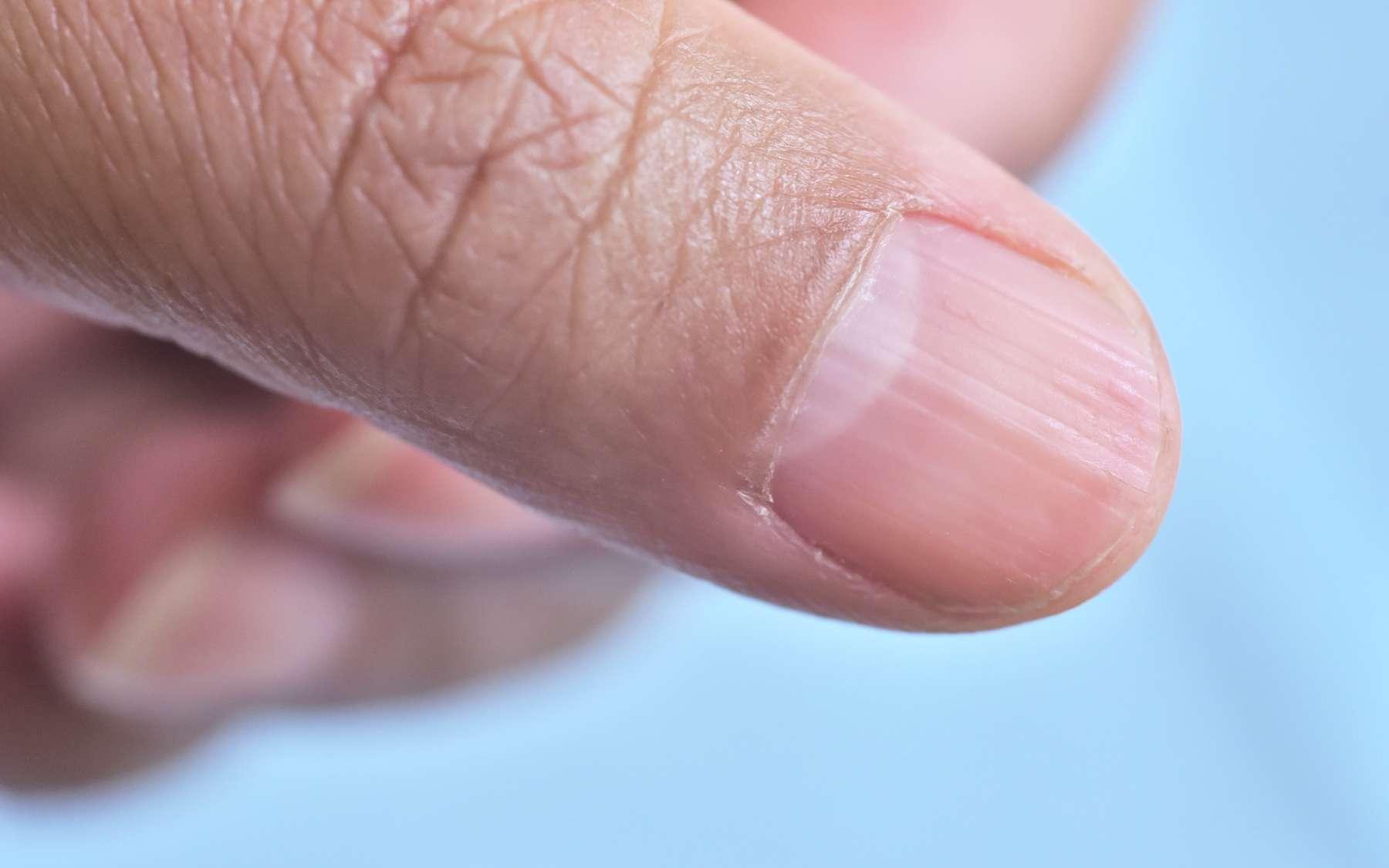 Ongle strié : un indicateur de la santé générale. © naowarat, Adobe Stock