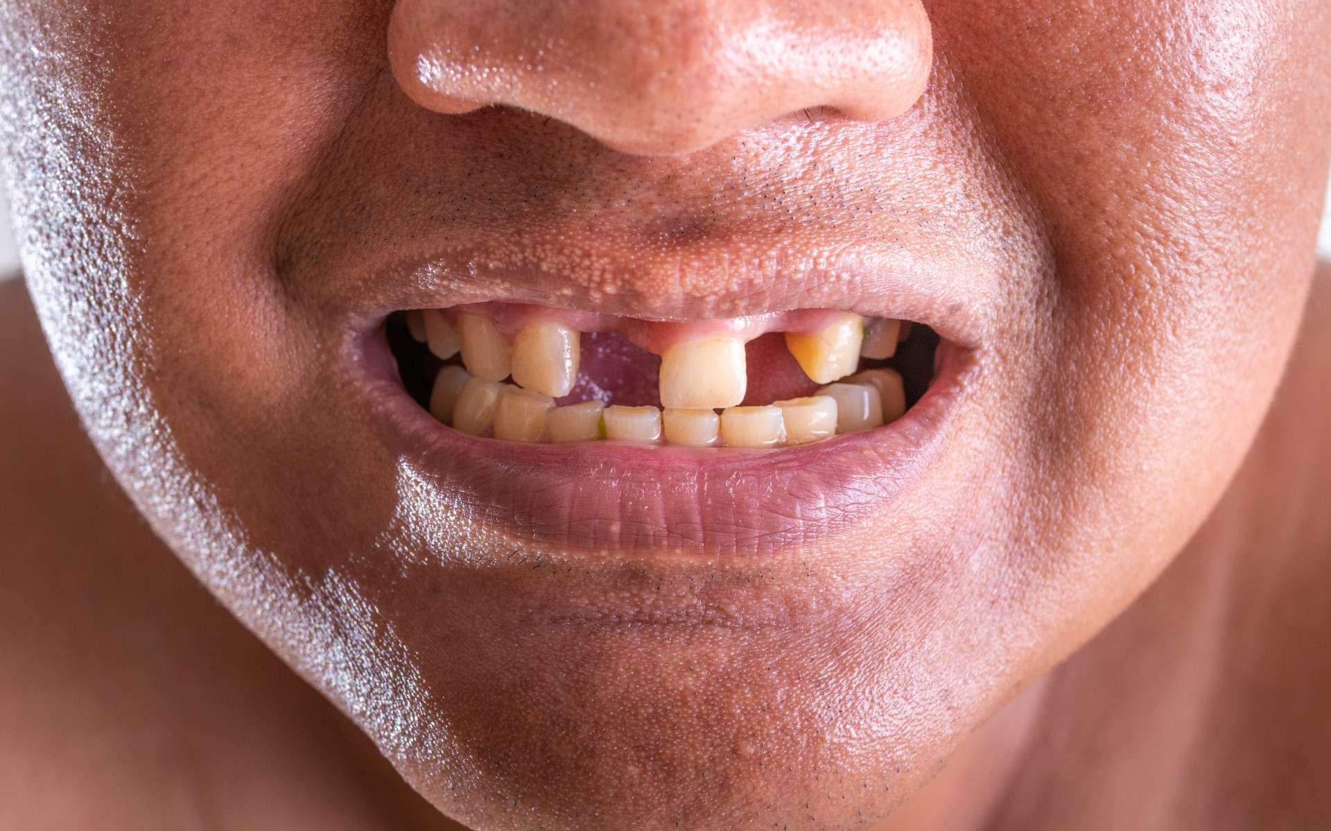 L'agénésie dentaire est une maladie où une ou plusieurs dents définitives sont absentes. © praewpailyn, Adobe Stock