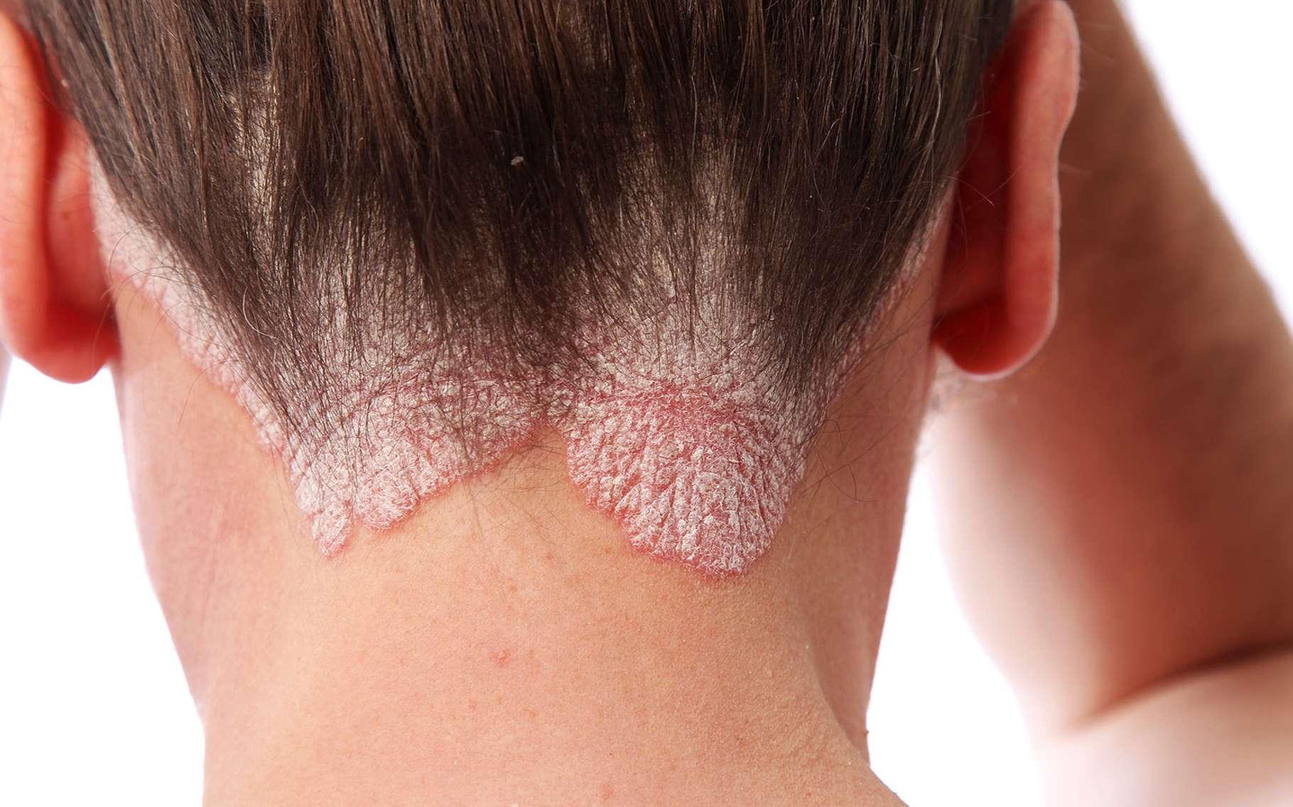 Quels sont les symptômes et traitements du psoriasis ? Ici, du psoriasis à la base du cou. © Fotolia